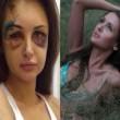 Alexandra Sereda, modella russa sfigurata dall'ex fidanzato milionario 3