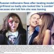 Alexandra Sereda, modella russa sfigurata dall'ex fidanzato milionario 4