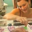 Hope e Faith, Speranza e Fede: le gemelline siamesi morte dopo 18 giorni (FOTO-VIDEO) - 5
