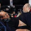Donnie e Ronnie Galyon, i gemelli siamesi 12
