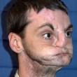 Richard Lee Norris, dopo il trapianto di faccia diventa modello per GQ FOTO-VIDEO 7