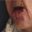 Scambia procione (con la rabbia) per il suo gatto: donna di 88 anni attaccata e ferita03