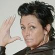 Fb, donna morsa da falsa vedova nera: medici le amputano un dito 5