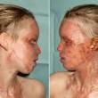 """Katie Piper, sfregiata con l'acido pubblica le foto: """"I segni non mi spaventano"""""""