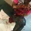 Ragazzo strabico colpito col machete in Malesia03