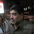 Diego Armando Maradona, lifting a 54 anni: ritocchino al volto 03