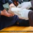 Isis taglia mani ai ladri FOTO. Prima fascia braccia e imbottisce di antidolorifici02