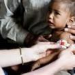 Malnutrizione in Nepal