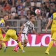 Juventus: Claudio Marchisio infortunato, un mese fermo