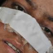 Mutila moglie tagliandole naso: orrore in Afghanistan FOTO 3