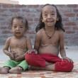 """I due fratelli indiani che a 7 anni sono già """"vecchi""""7"""