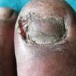 VIDEO YOUTUBE Medico raschia col bisturi unghia infetta e... 2