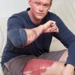 Volto e gambe distrutte dall'acido per lite stradale FOTO3