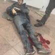 Bruxelles: Sebastien Bellin, FOTO giocatore basket ferito2