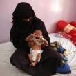 Udai Faisal, bimbo 5 mesi morto di fame in Yemen. FOTO choc04