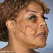 Iniezioni di cemento e colla per sembrare più donna. Ora è così03