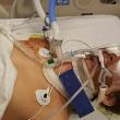 Un ragazzino americano di 15 anni, Rowdy Radford, di Sargent, Texas, ha perso una gamba, le dita di una mano e rischia di restare cieco dopo che un fuoco d'artificio c