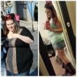 Lyndsey Hoover perde 88 chili: gliene asportano 9 solo di pelle...5