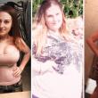 Lyndsey Hoover perde 88 chili: gliene asportano 9 solo di pelle...4