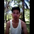 Filippine, voleva il naso occidentale6