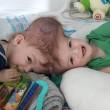 Anias e Jadon prima della operazione. Hanno 13 mesi