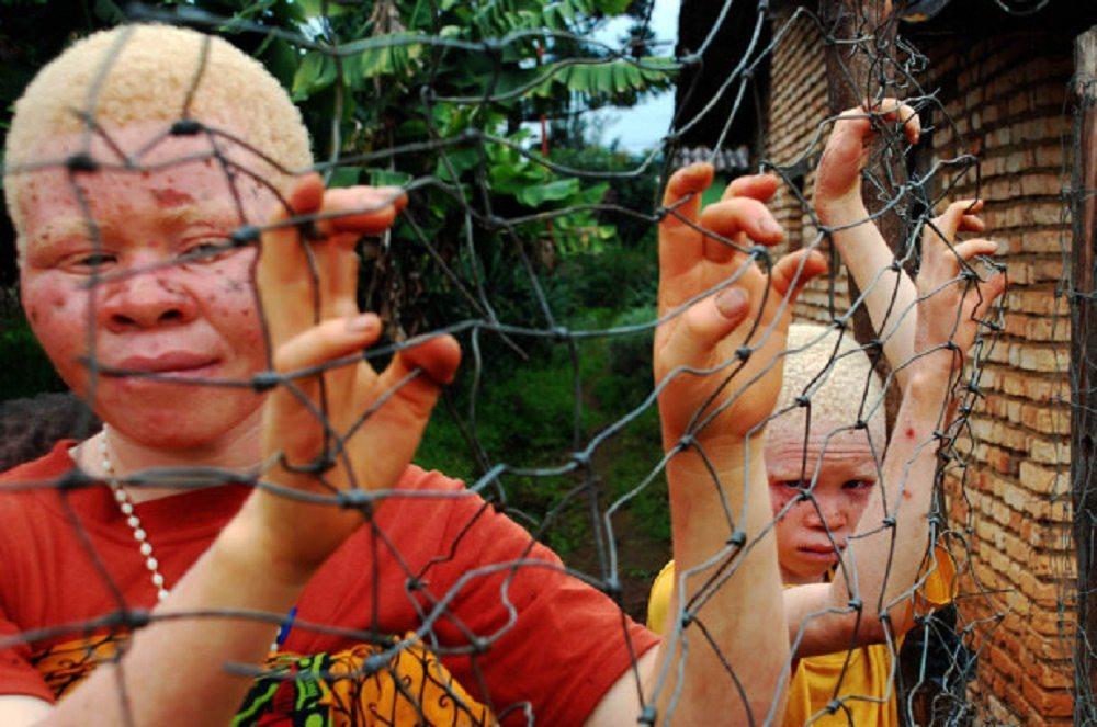 Orrore Malawi, strage di bimbi albini: smembrati e usati per pozioni magiche1