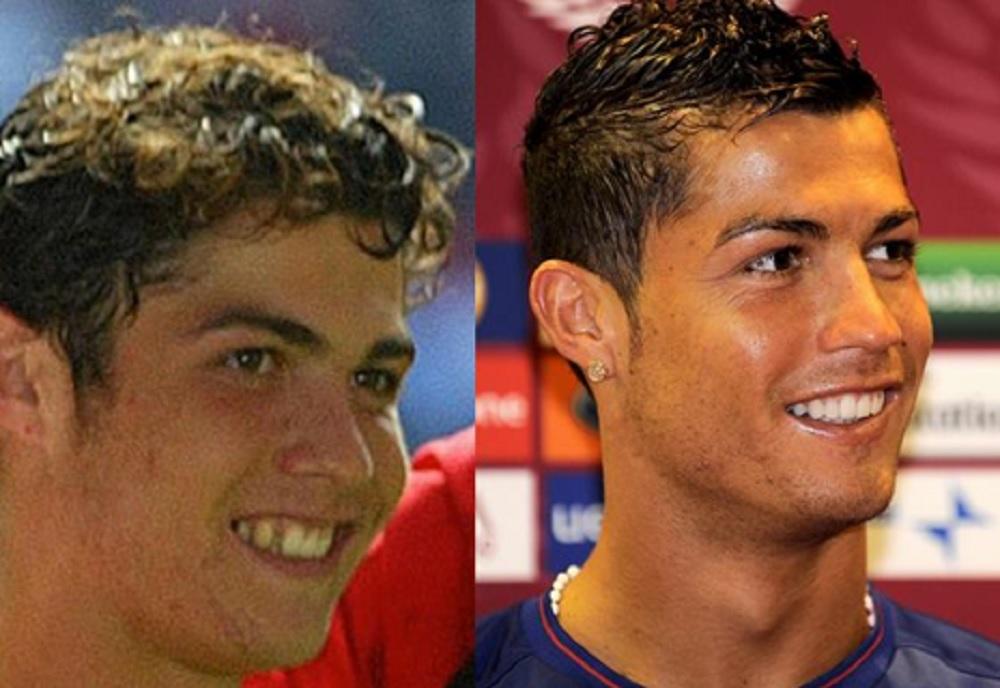 Cristiano Ronaldo, Higuain...: quando il cambiamento è incredibile FOTO