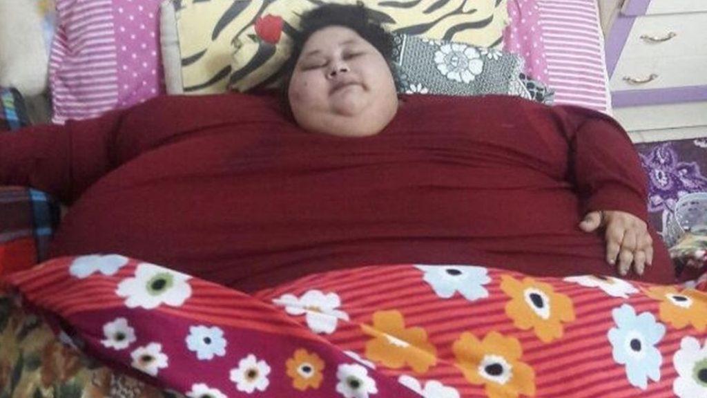 Eman Ahmed, la donna più pesante al mondo, ha perso 50 kg in 12 giorni