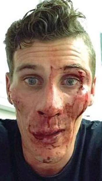 Pierre Ambroise Bosse, campione atletica aggredito fuori da bar