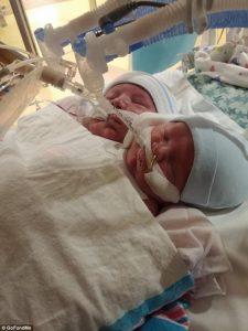 Cincinnati, nati gemelli siamesi inoperabili. I genitori non hanno voluto abortire01