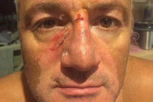 Napoli, si rifiuta di pagare il parcheggiatore abusivo: preso a pugni