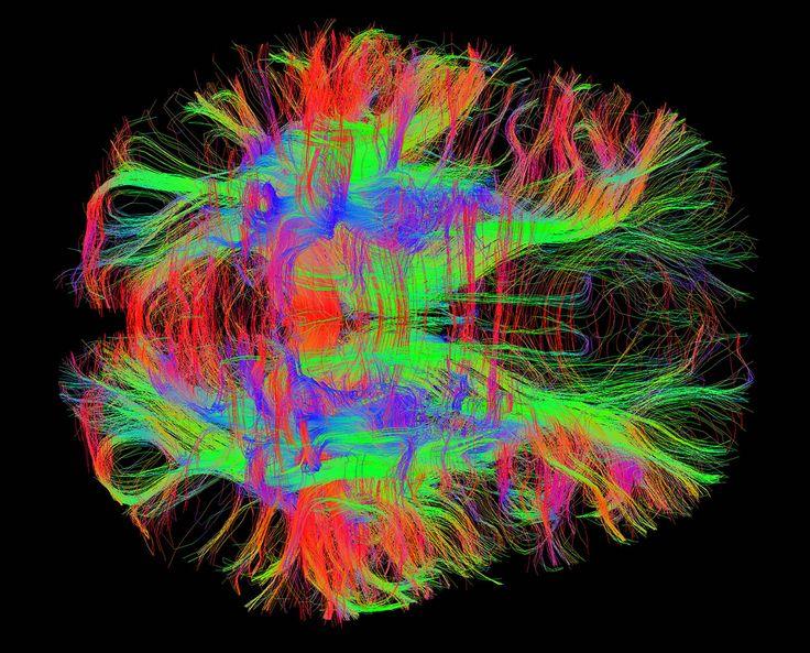 cervello-evoluzione
