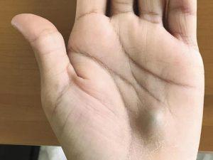 mano nodulo infezione cuore