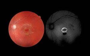 Retina bruciata con puntatore laser