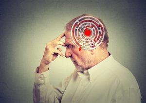 Alzheimer BAN2401