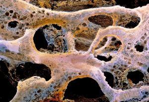Osteoporosi, la dieta mediterranea riduce il rischio di frattura dell'anca