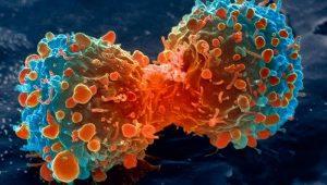 Tumore, suicidio cellulare come terapia: il codice di autodistruzione