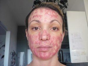 """Cristina Guidetti, ex modella sfigurata dal chirurgo: """"93mila euro buttati, non uno di risarcimento"""""""
