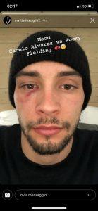 Foto, De Sciglio con l'occhio nero dopo il derby: l'immagine è virale sui social