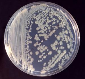 Candida auris, cos'è e sintomi dell'infezione da fungo resistente ai farmaci