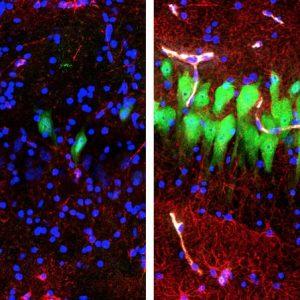 Cervelli riattivati per 32 maiali morti. Gli umani vivi? Lontana l'accensione