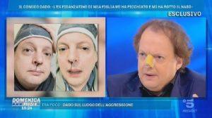 """Domenica Live, Dado parla dell'aggressione: """"L'ex fidanzato di mia figlia..."""""""