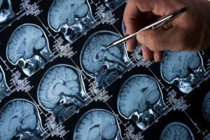 Demenza, no Alzheimer: la nuova malattia scoperta dai ricercatori