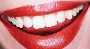 I dentifrici neri al carbone attivo non sbiancano i denti e... provocano la carie (foto Ansa)