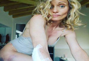 Justin Mattera, brutta caduta in bici con Francesco Moser (foto Instagram)