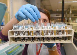 Trapianti, trovato il gene che provoca il rigetto dell'organo