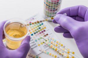 Cancro alla prostata, un nuovo test delle urine per diagnosi e prevenzione