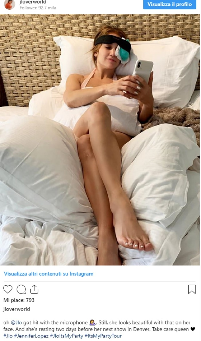 Jennifer Lopez, incidente sul palco: La FOTO che spaventa i fan2