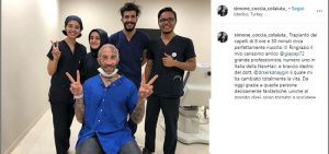"""Simone Coccia Colaiuta, trapianto di capelli in Turchia FOTO: """"Intervento lungo 8 ore perfettamente riuscito""""3"""