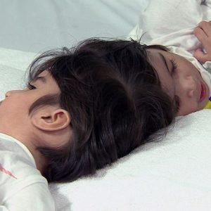 Gemelle siamesi unite dalla testa: maratona chirurgica di 55 ore per separarle